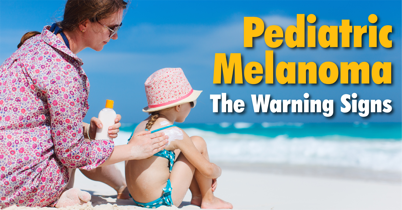 Pediatric Melanoma