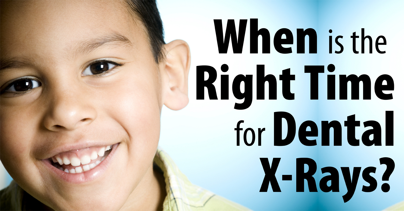 When is the Right Time for Dental X-Rays?